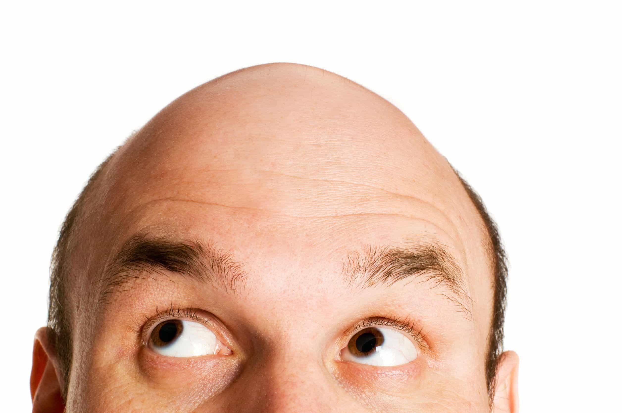 hairfall treatments